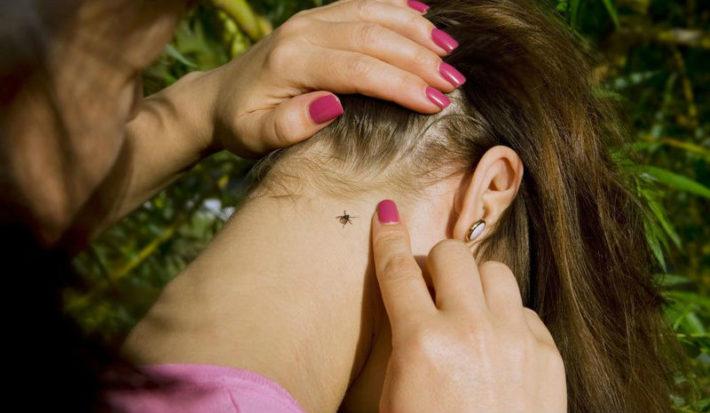 Клещ на шее у женщины